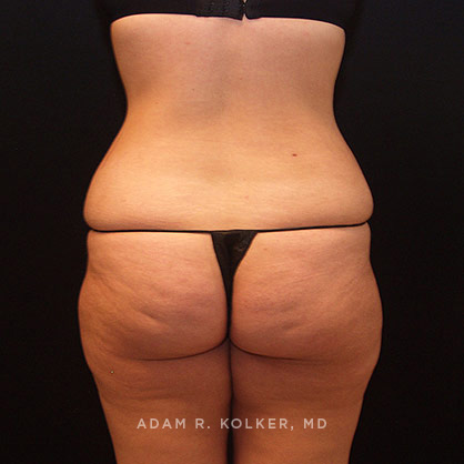 Lower Body Lift Before & After Image