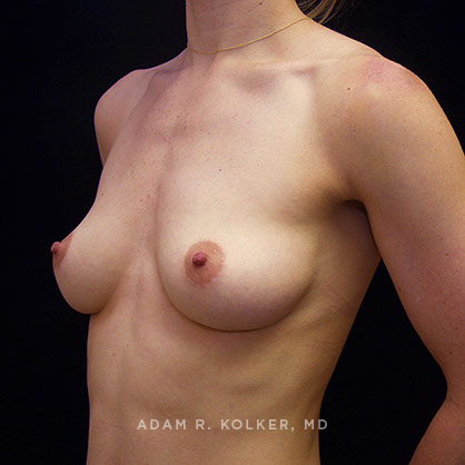 Best Breast Augmentation NYC
