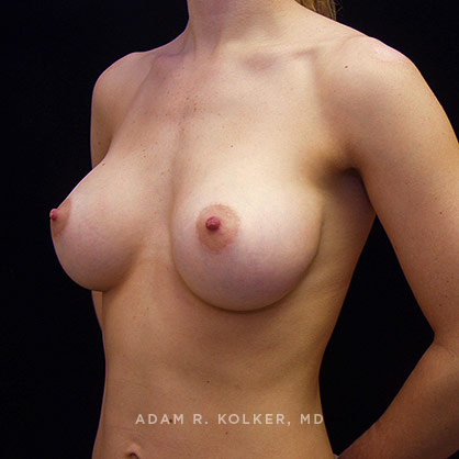 Breast Implants NYC