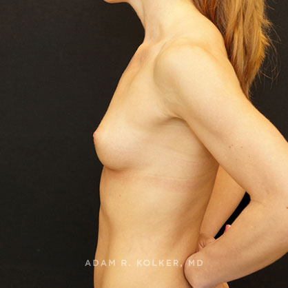 Tuberous Breast Correction Before & After Image