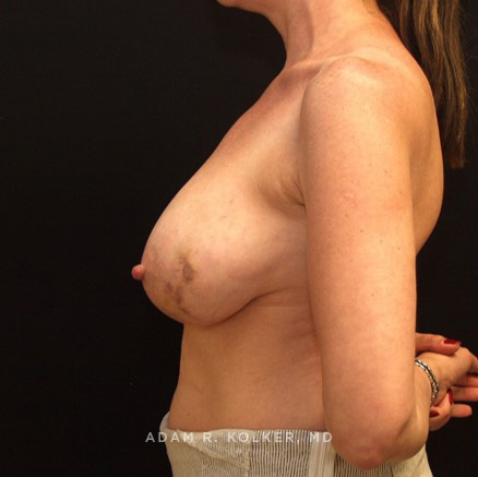 Breast Reconstruction Before & After Image