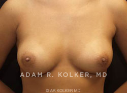 Inverted Nipple Correction Before & After Image