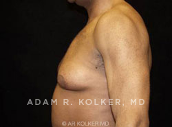 Gynecomastia / Male Breast Reduction Before & After Image