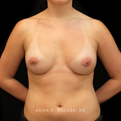 Tuberous Breasts Correction NYC
