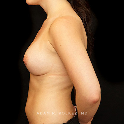 Tuberous Breast Correction Before and After Photos